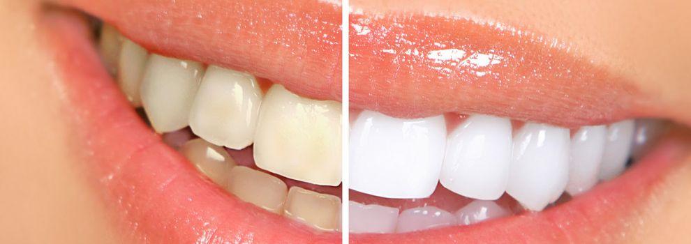 Dentistas hispanos en dallas